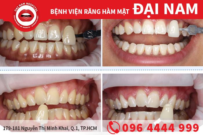 Những điều cần biết về răng