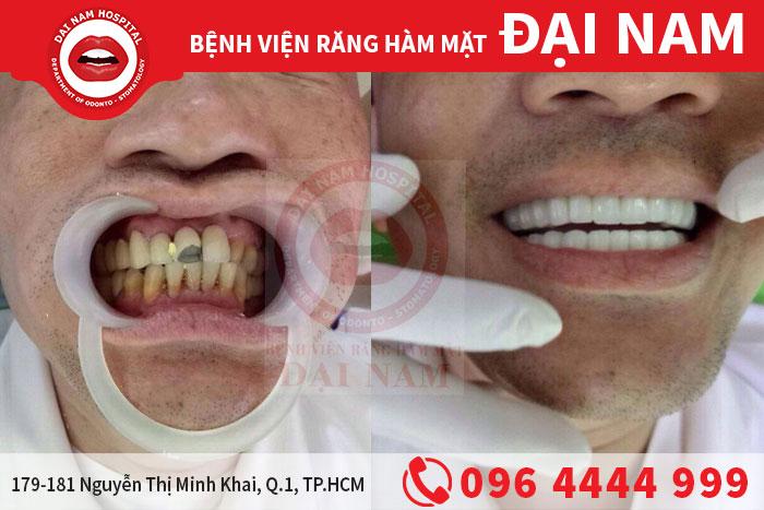 anh Huy Hoàng trước và sau khi làm răng sứ