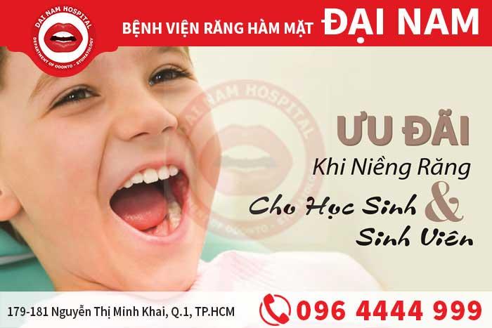 ưu đãi khi niềng răng cho học sinh sinh viên
