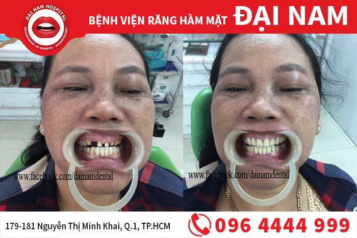 cầu răng