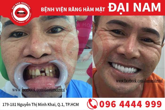 cấu răng sứ