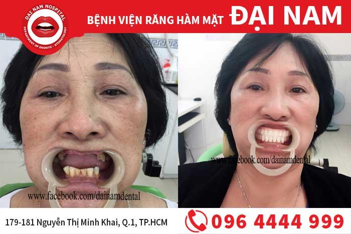 Hình ảnh khách hàng cấy ghép Implant tại Bệnh viện Đại Nam