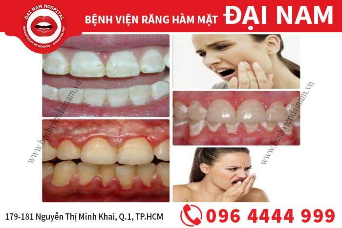 Biến chứng sau khi tẩy trắng răng