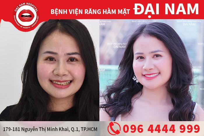 https://benhviendainam.vn/upload/hinhanh/boc-rang-su-tham-my.jpg