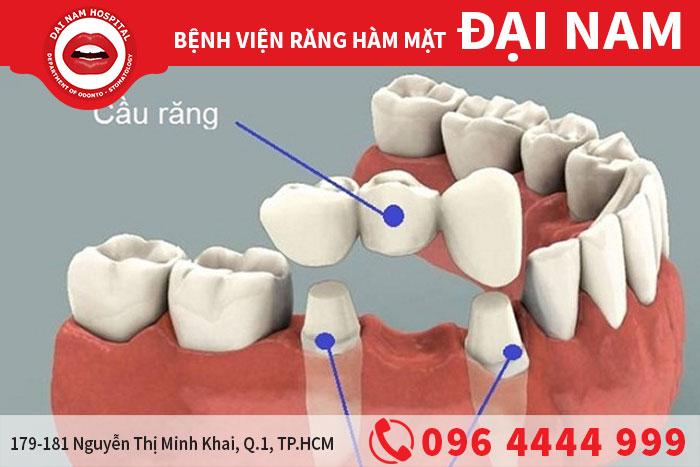 các phương pháp tối ưu cho răng đã mất