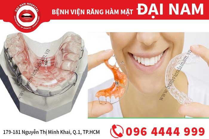 các loại hàm duy trì sau khi niềng răng