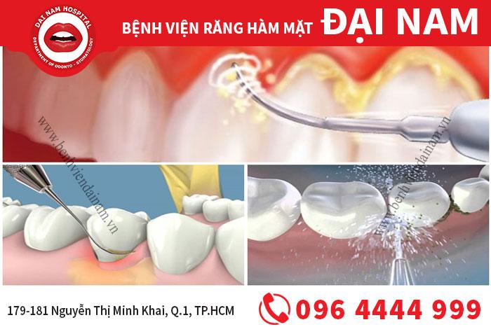 Cạo vôi răng an toàn, tiết kiệm