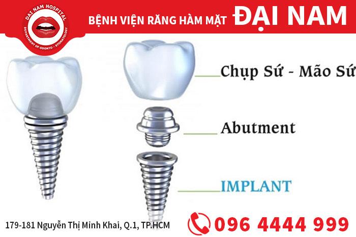 cấu tạo của implant