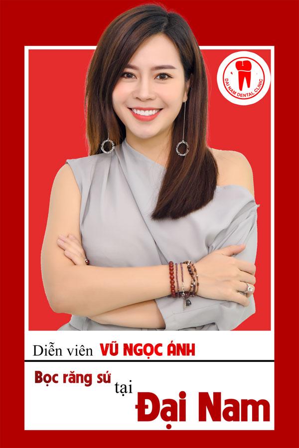 diễn viên Vũ Ngọc Ánh dán răng sứ