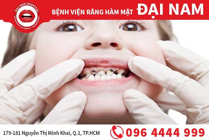 Điều trị viêm tủy răng cho trẻ em