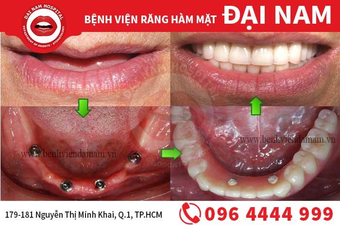 Mất răng toàn hàm - Đâu là giải pháp tốt nhất?