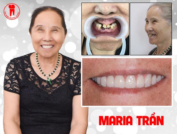 khách hàng cấy implant maria trần