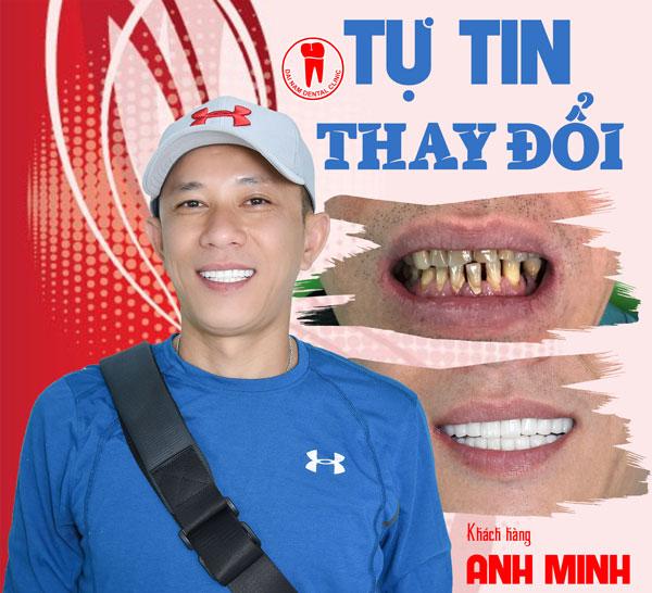 khách hàng làm răng sứ