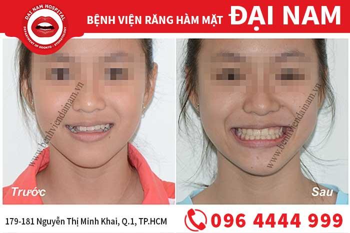 Hàm duy trì sau khi niềng răng-chỉnh nha