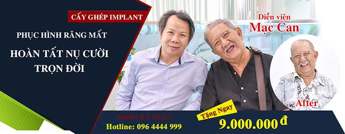 Quà tặng khủng dành cho khách hàng cấy ghép răng implant