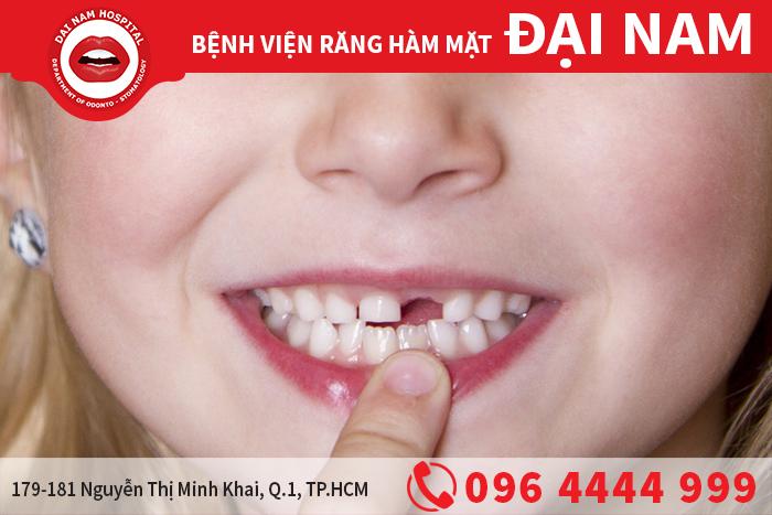 Bắc cầu răng sứ an toàn tiết kiệm chi phí