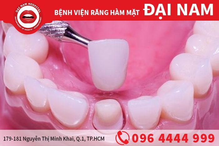 mão răng
