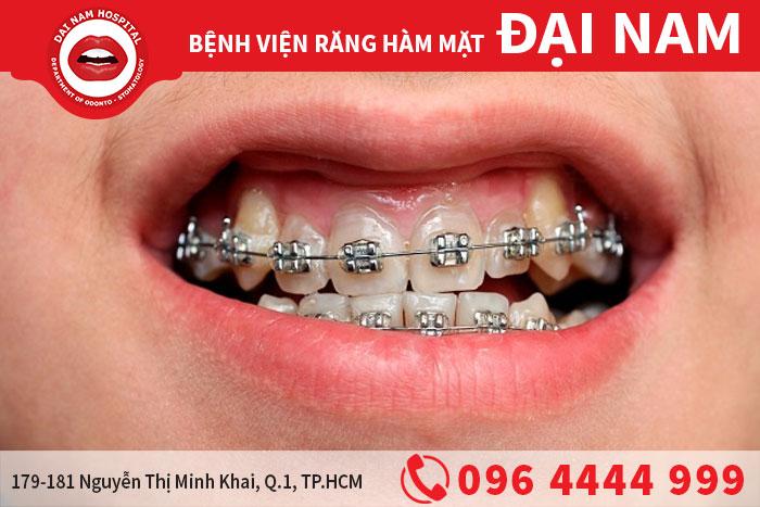 chỉnh nha niềng răng
