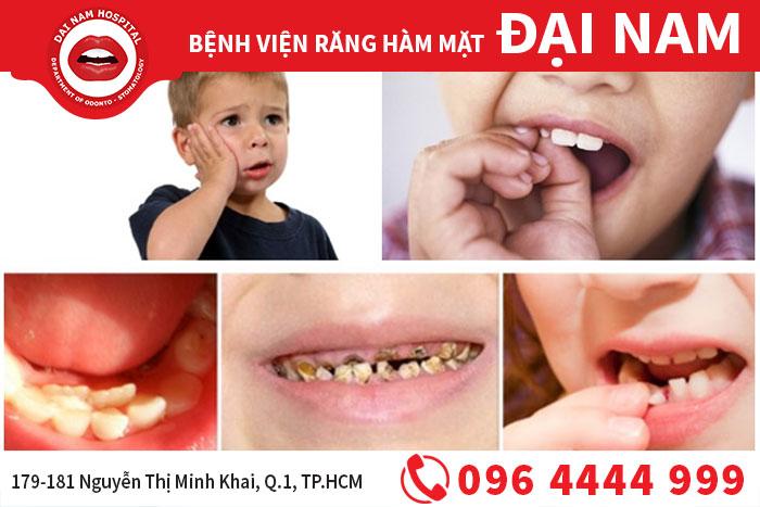 nhổ răng sữa