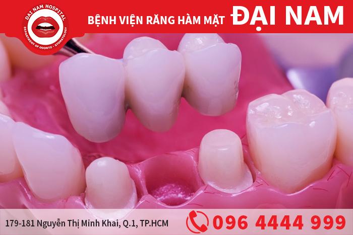 bắc cầu răng sứ
