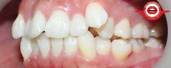 Răng lệch lạc nên niềng răng hay bọc sứ - lời khuyên từ chuyên gia