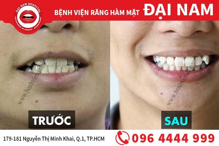 Răng bị nhiễm kháng sinh có tẩy trắng được không