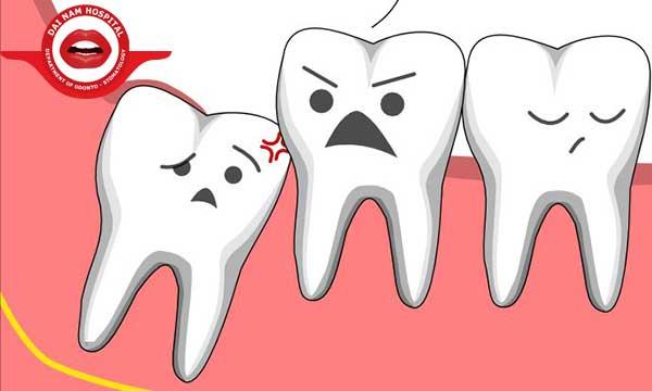 Răng khôn và 24 thông tin bạn cần phải biết khi mọc răng khôn