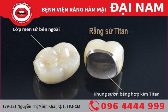 Răng sứ kim loại