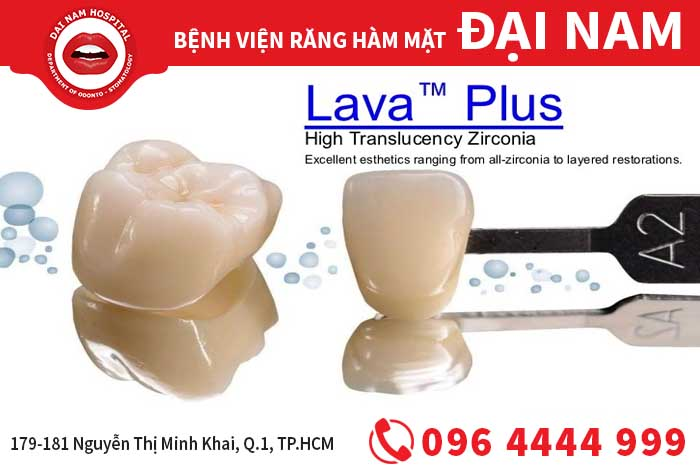 Răng sứ Lava Plus - 3M ESPE