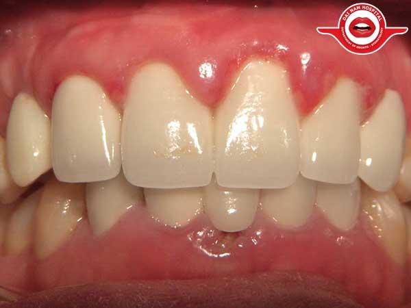 Cách trị sưng nướu răng tại nhà hiệu quả nhất