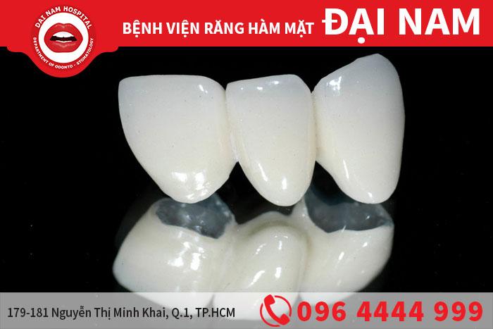 răng sứ Titan