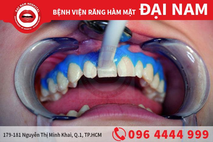 Những câu hỏi thường gặp về tẩy trắng răng?