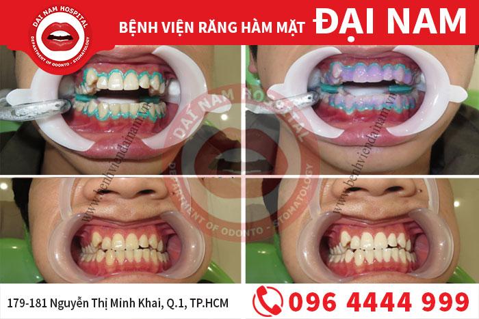 Tẩy trắng răng tại phòng