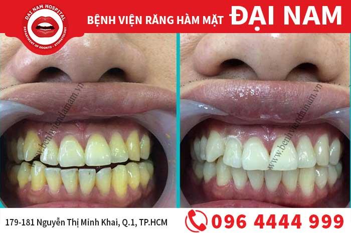 Phương pháp tẩy trắng răng ố vàng