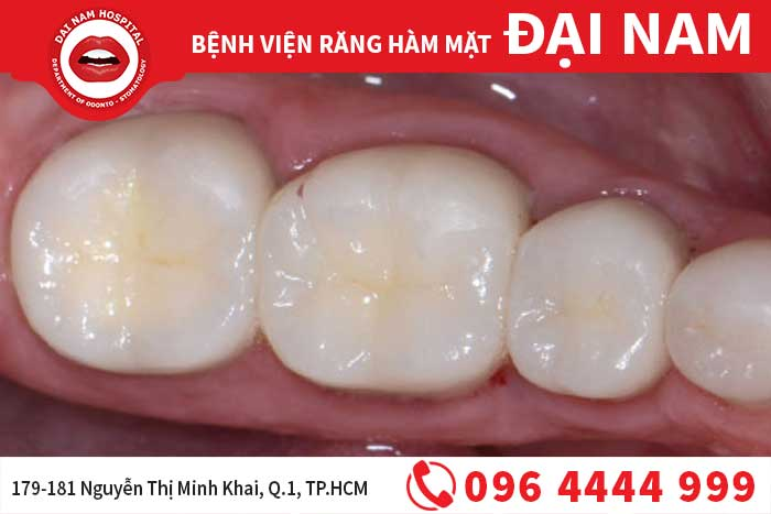 Trám răng trẻ em ngăn ngừa sâu răng