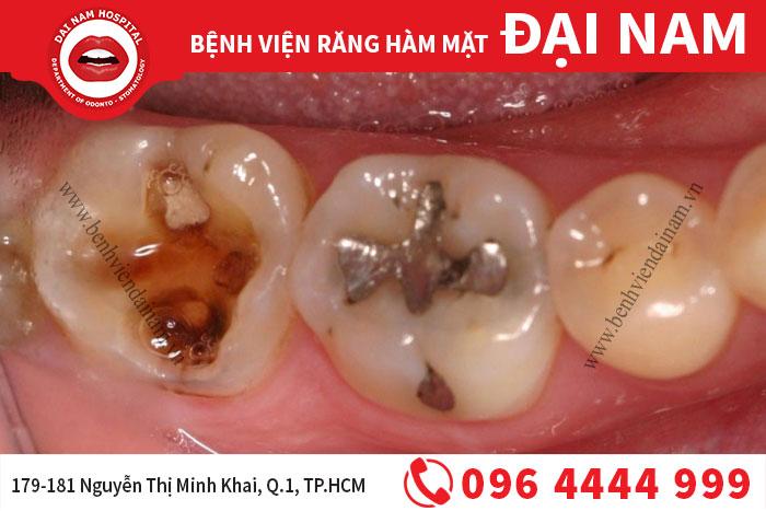 Trám răng sâu hiệu quả và những điều cần biết
